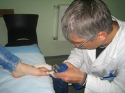 Удаление бородавок при помощи криодеструкции в клинике Медкрионика