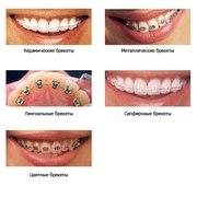 Исправление прикуса и выравнивание зубов (ортодонтия)